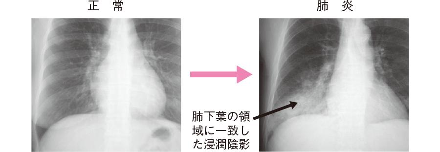 胸部X 線写真の浸潤陰影