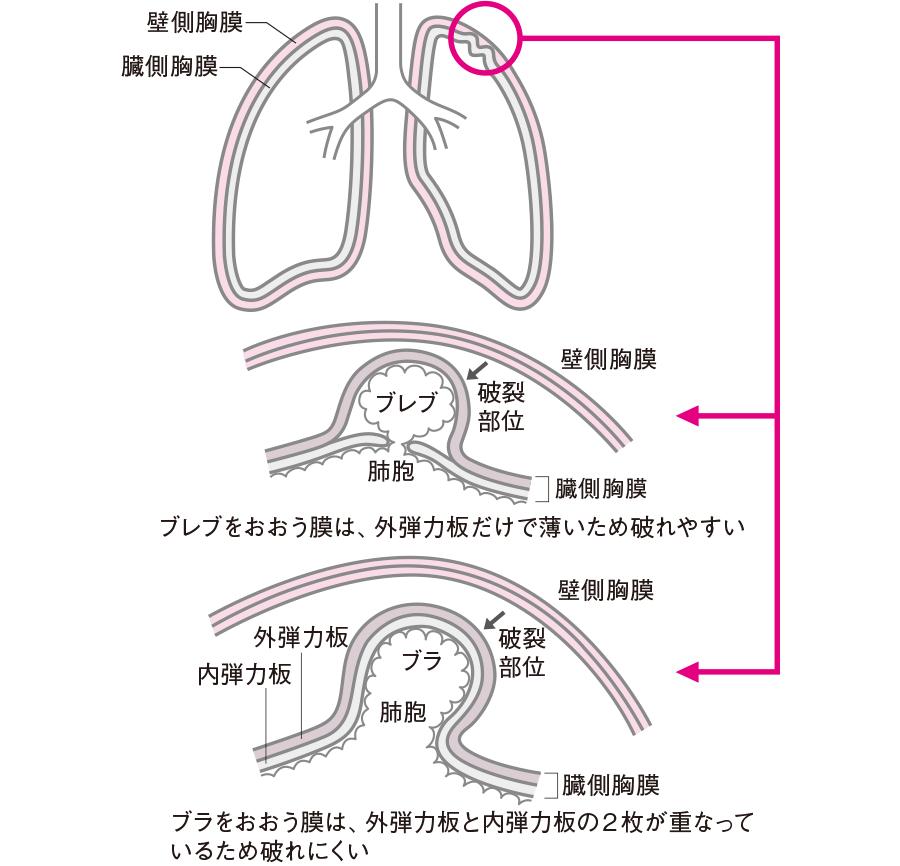 気腫性嚢胞膜