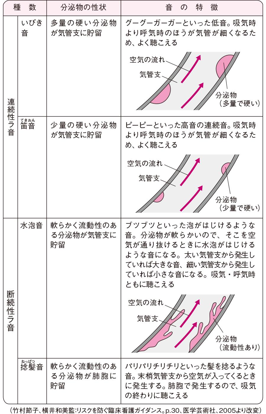 肺性副雑音(ラ音)
