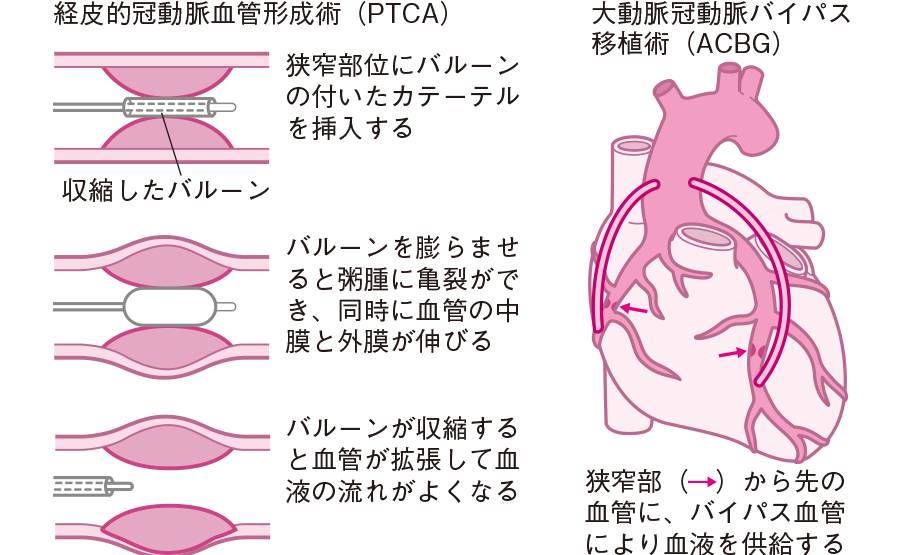 経皮冠動脈血管形成術(PTCA)と大動脈冠動脈バイパス移植術(ACBG)