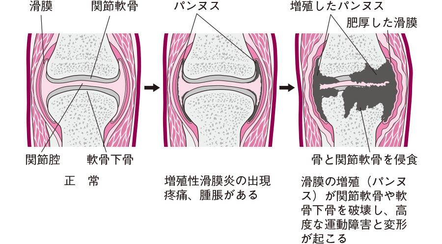 関節の病変