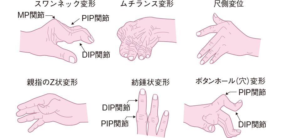 関節リウマチの関節変形