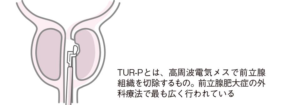 経尿道的前立腺切除術(TUR-P)