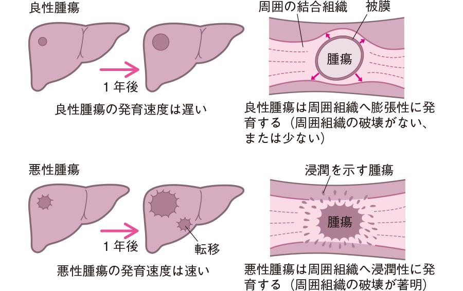 良性腫瘍と悪性腫瘍の増殖の様式