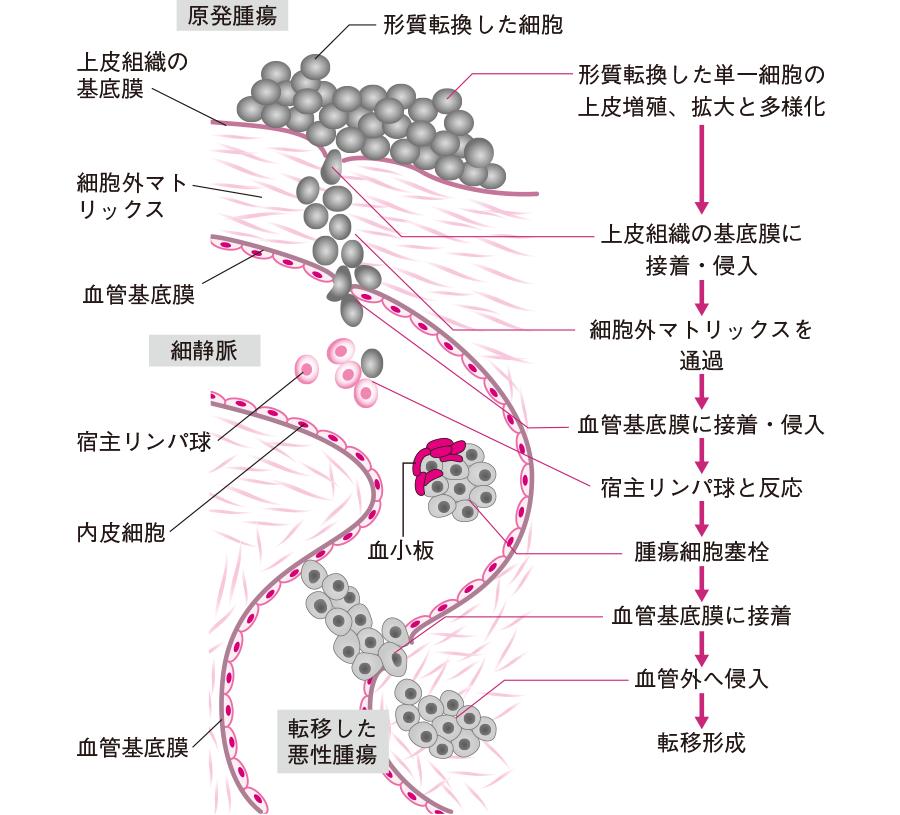 癌細胞の転移のメカニズム