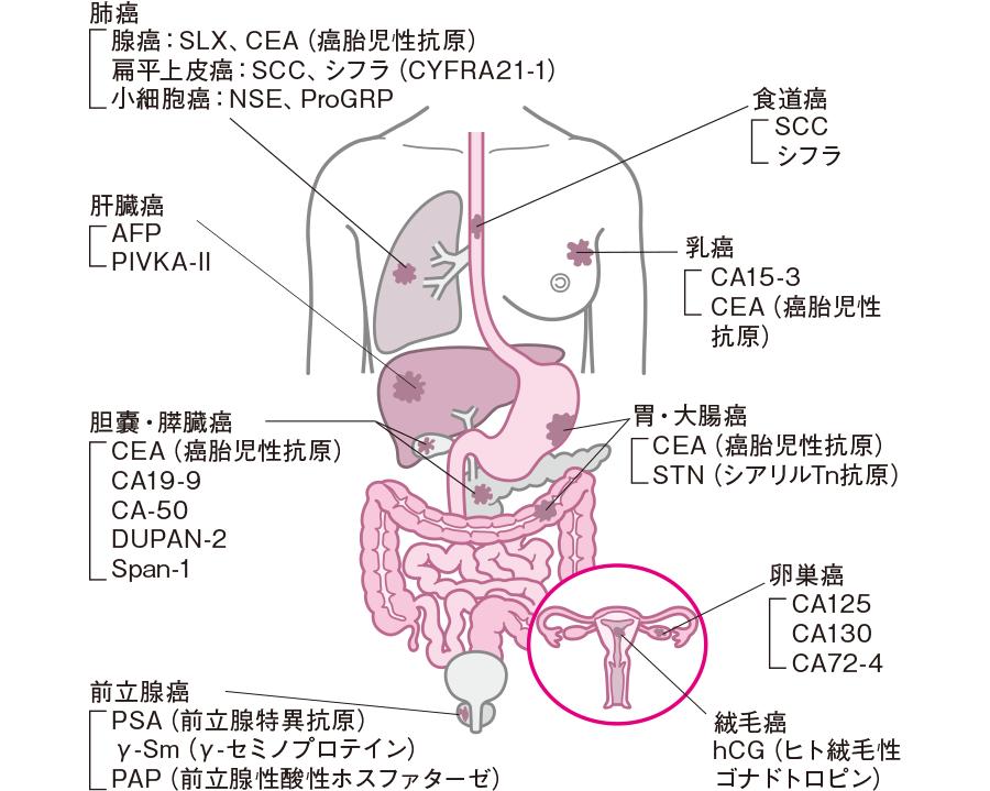 各種臓器の癌と腫瘍マーカー