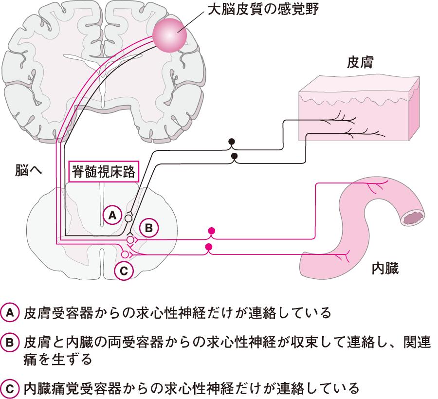 関連痛の発生機序