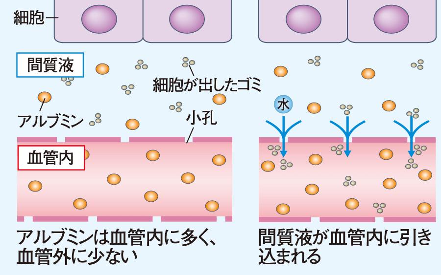 膠質 看護 血漿 浸透 圧