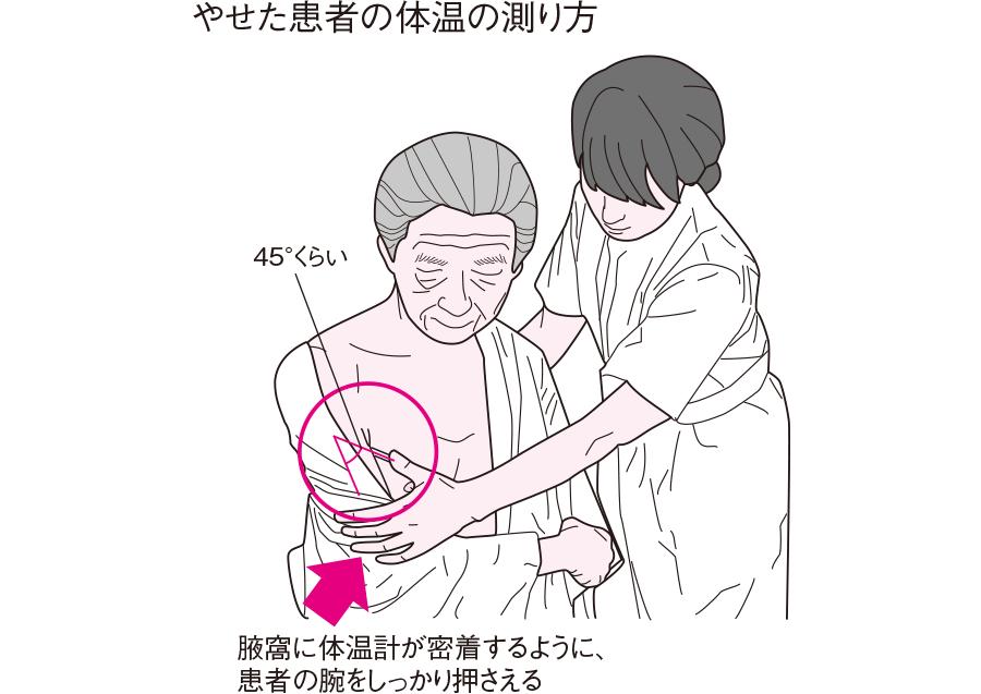 やせた患者の体温の測り方