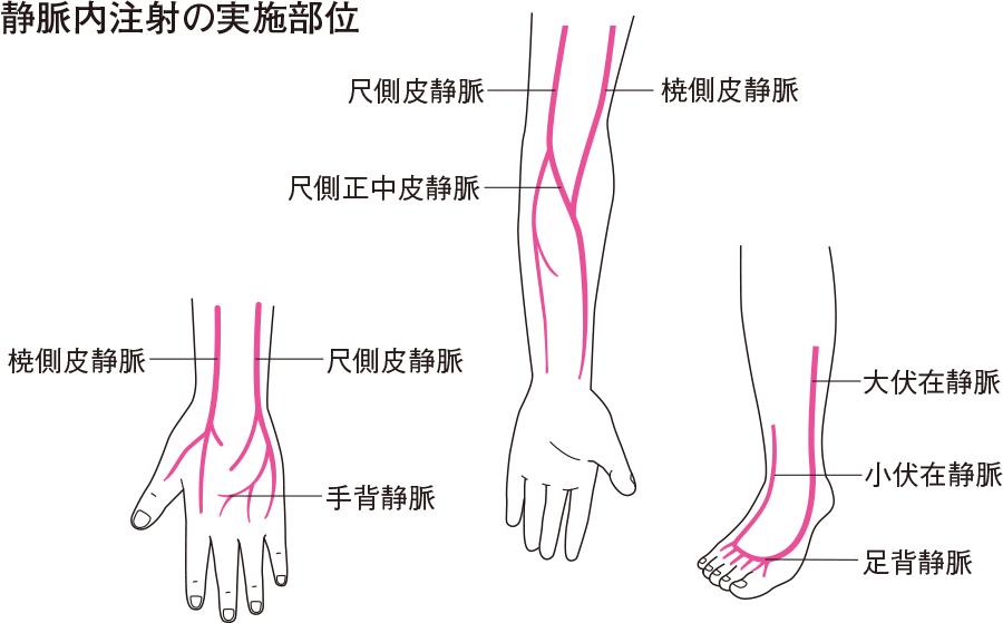 静脈内注射の実施部位