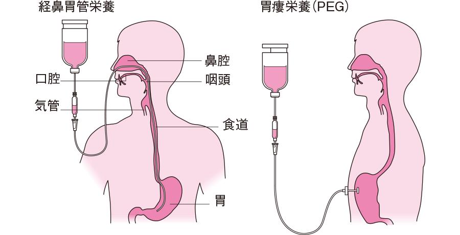経 鼻 経 管 栄養 チューブ