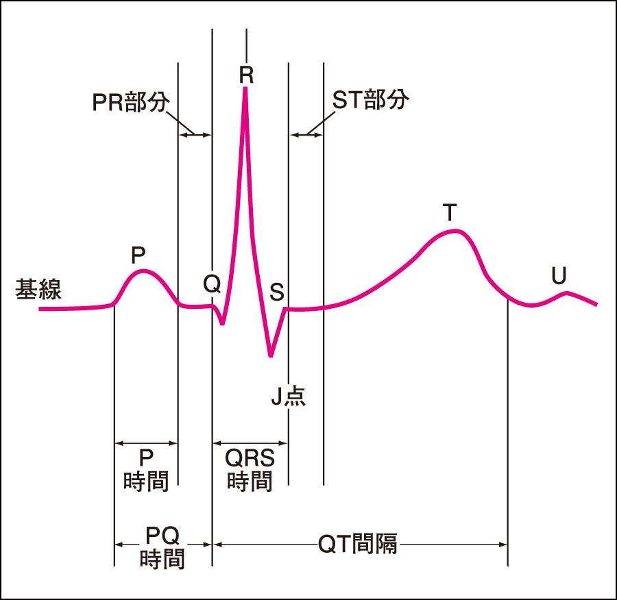 心電図波形