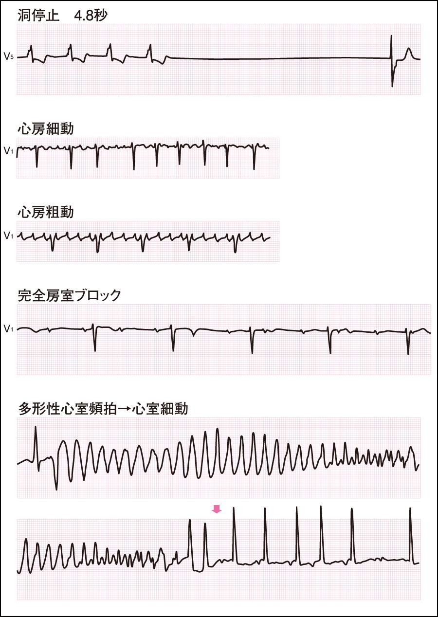 異常な心電図