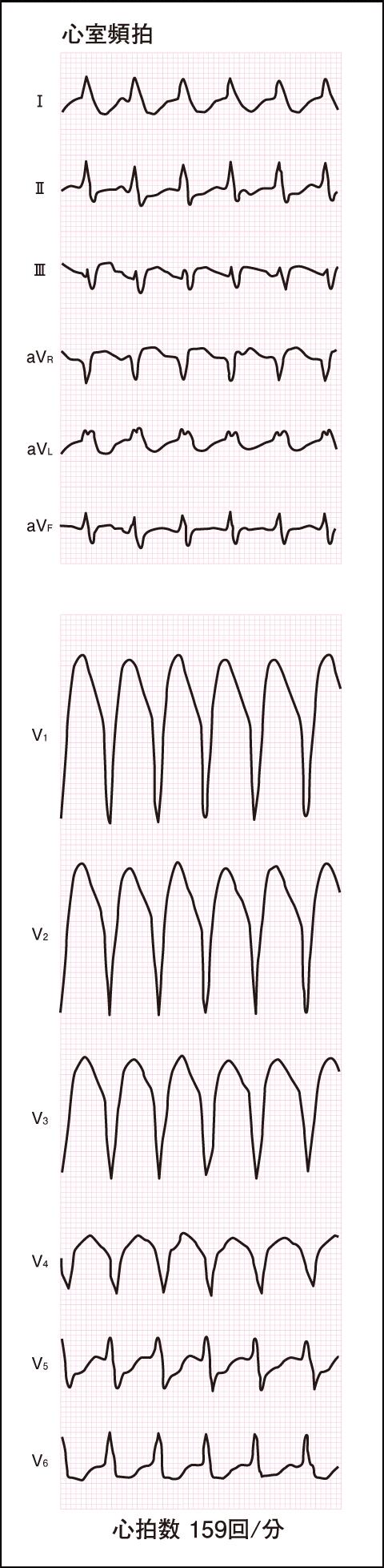異常な心電図(2)