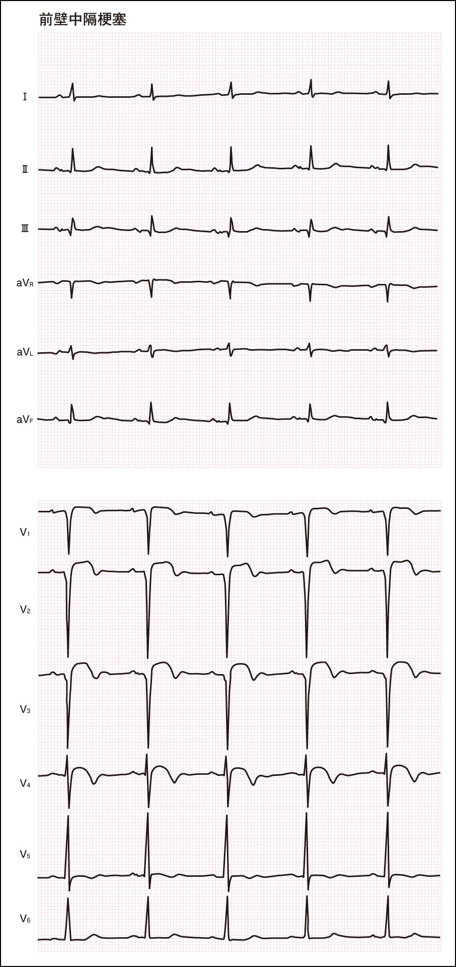異常な心電図(3)