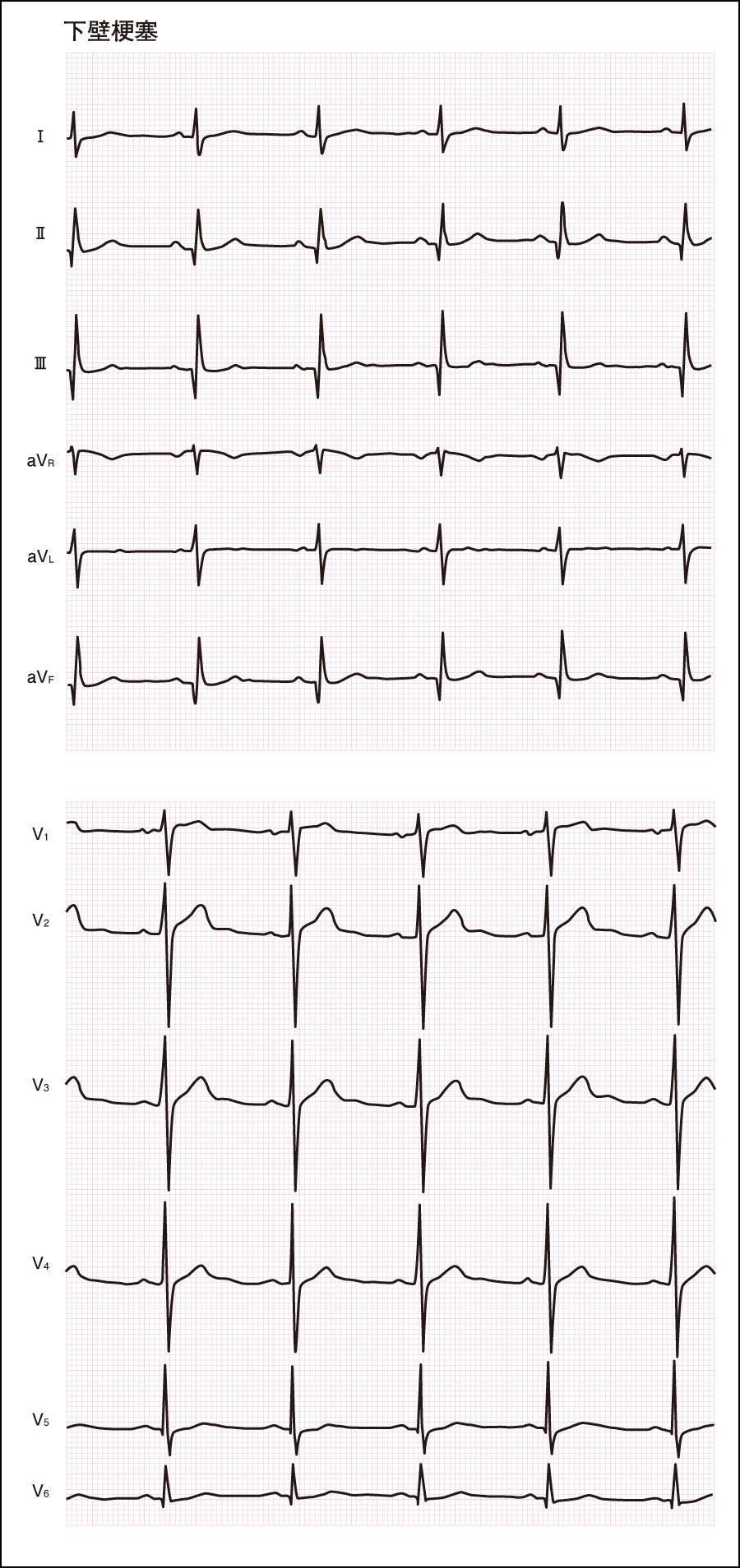 異常な心電図(4)