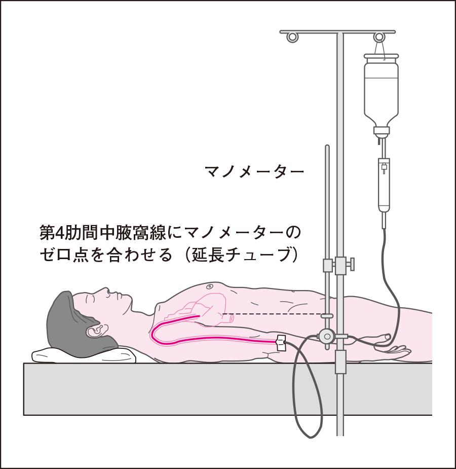 一般的に行われている中心静脈圧(CVP)測定法
