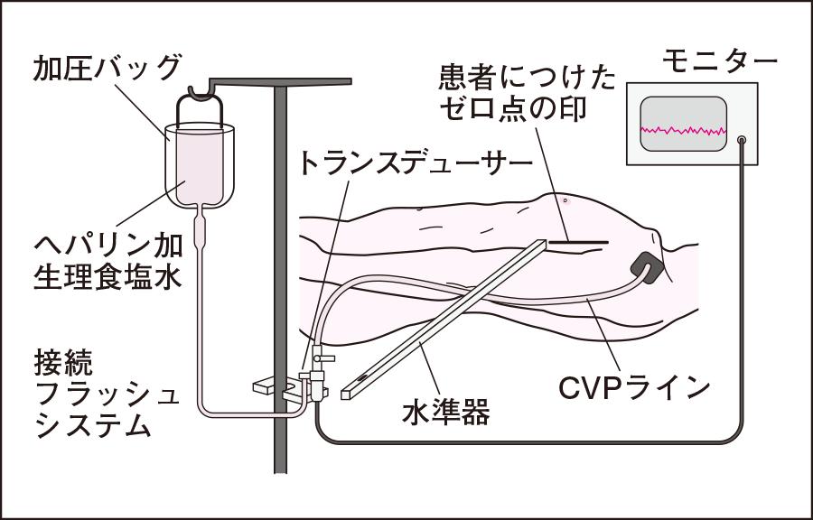 トランスデューサーによる測定法