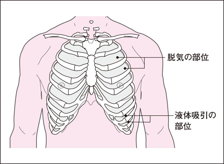 胸腔穿刺|呼吸器系の検査