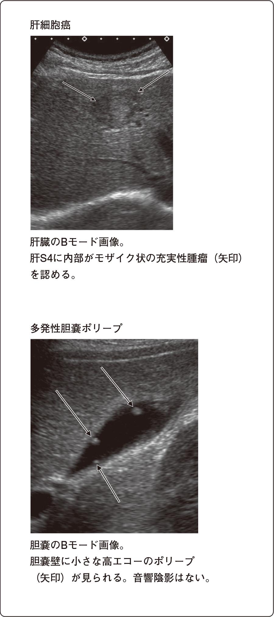 腹部超音波検査所見