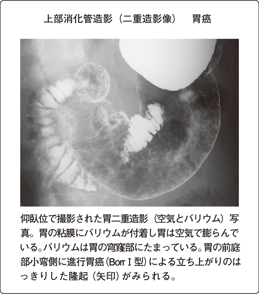 消化管造影検査|消化器系の検査...