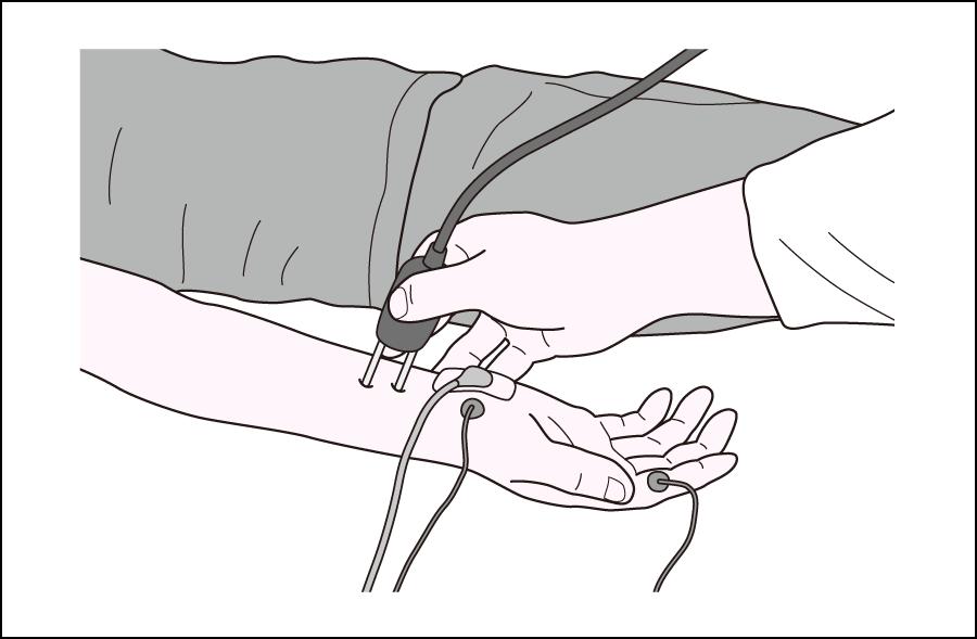 筋電図検査