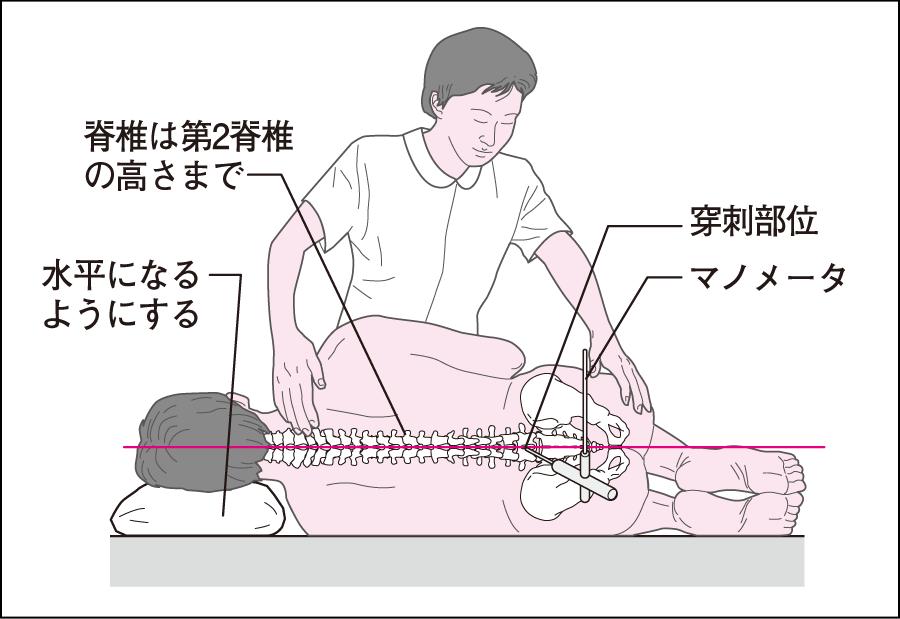 腰椎穿刺時の体位と介助の仕方