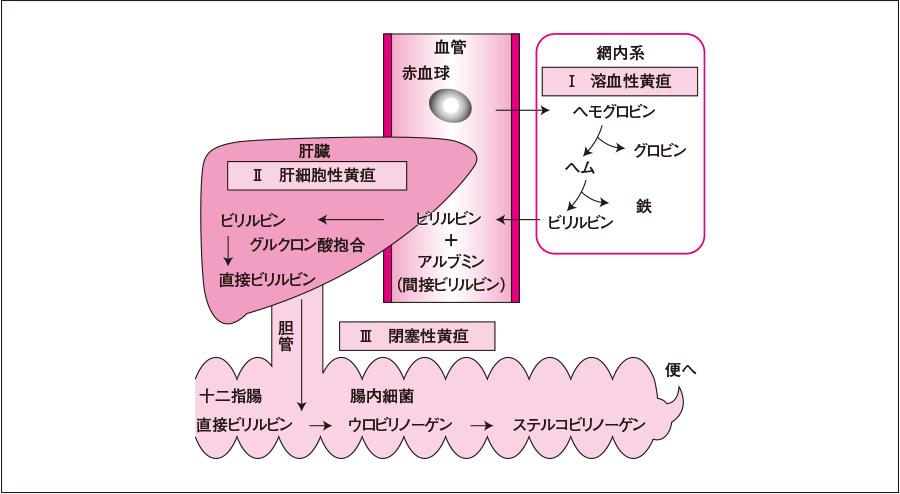 ヘム・ビリルビン代謝と黄疸