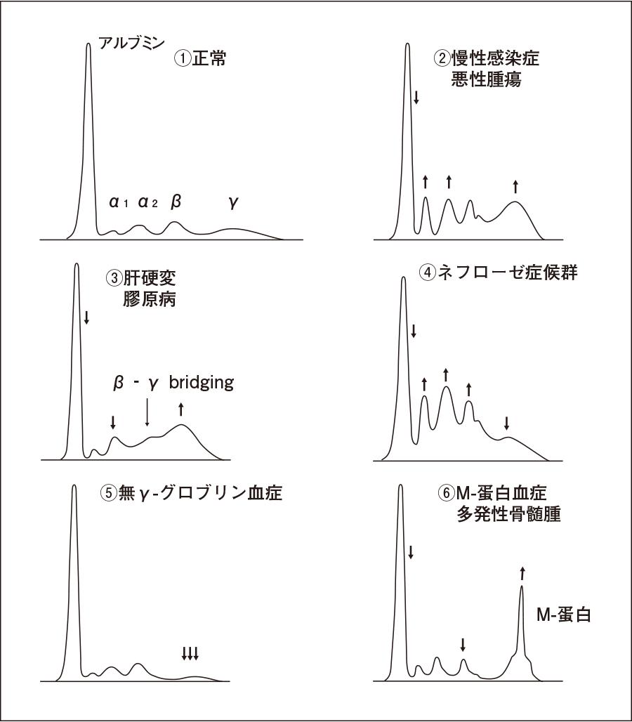 正常血清蛋白の電気泳動パターンと代表的な疾患の泳動パターン