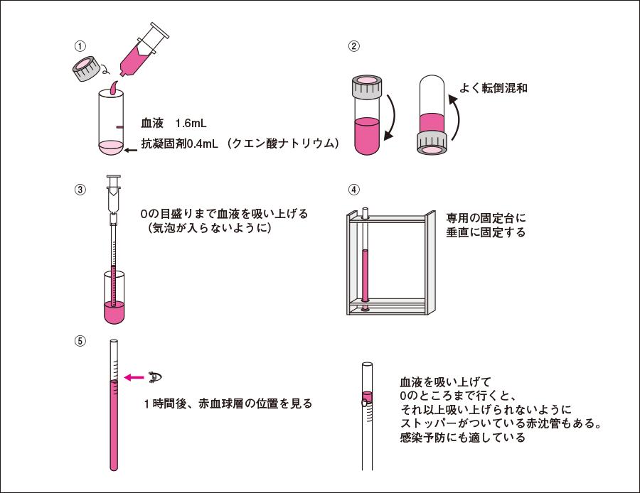 赤沈の測定法