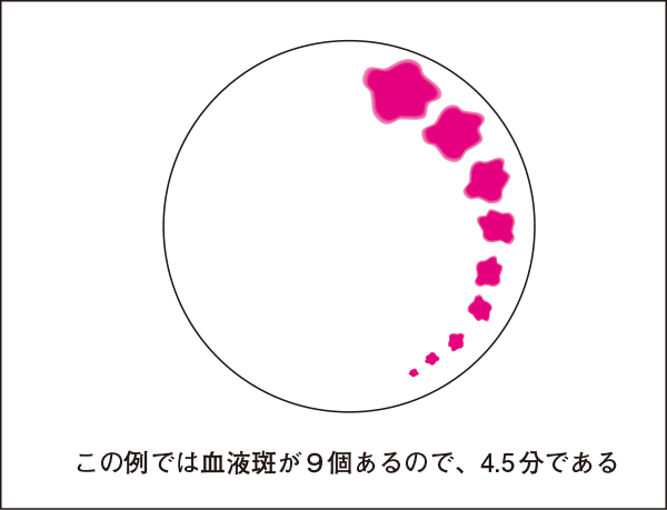 出血時間の測定