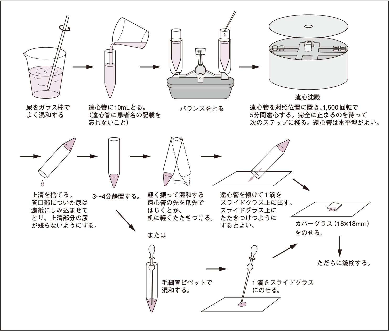 尿沈渣標本作成の手順