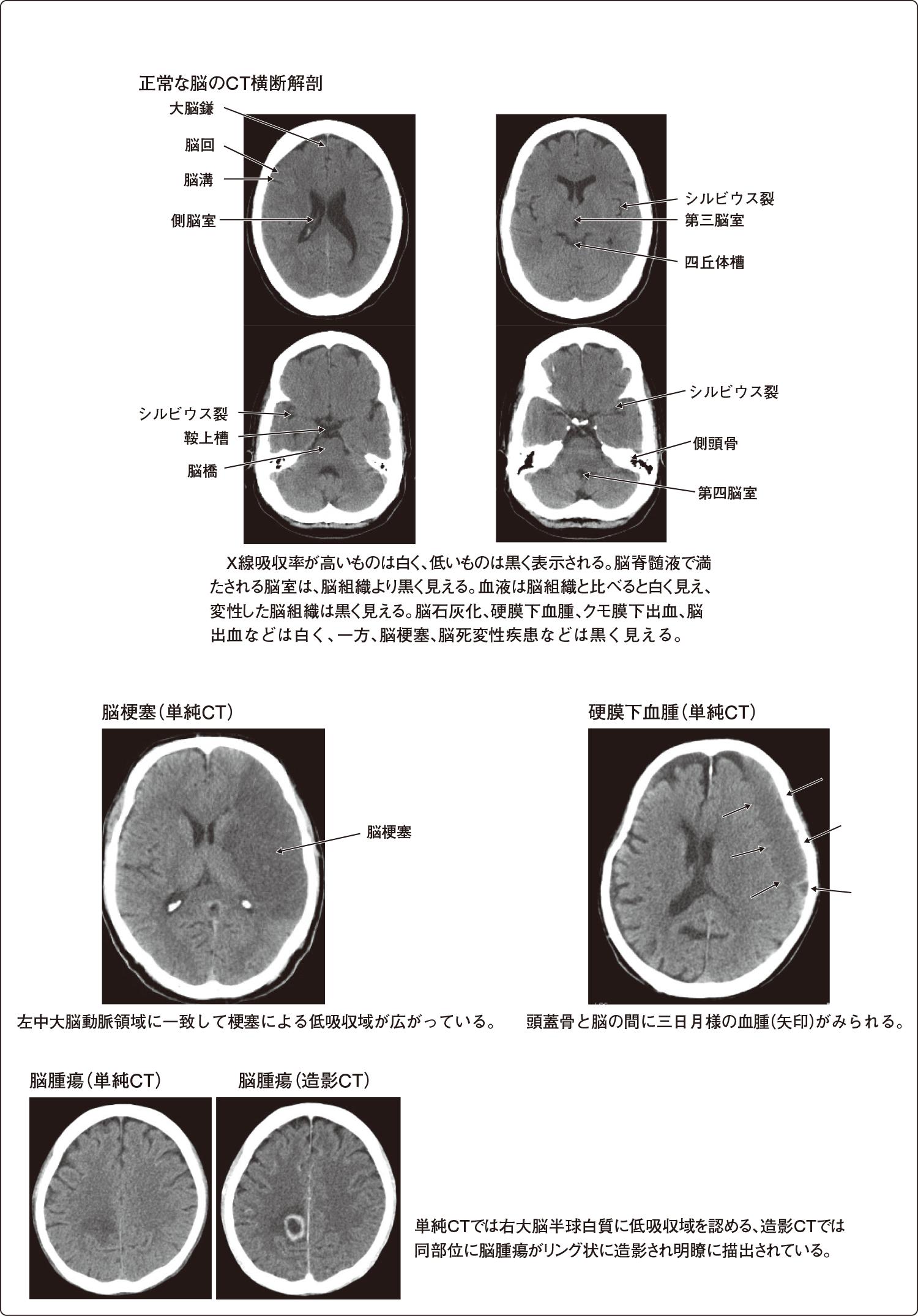 頭部CT画像