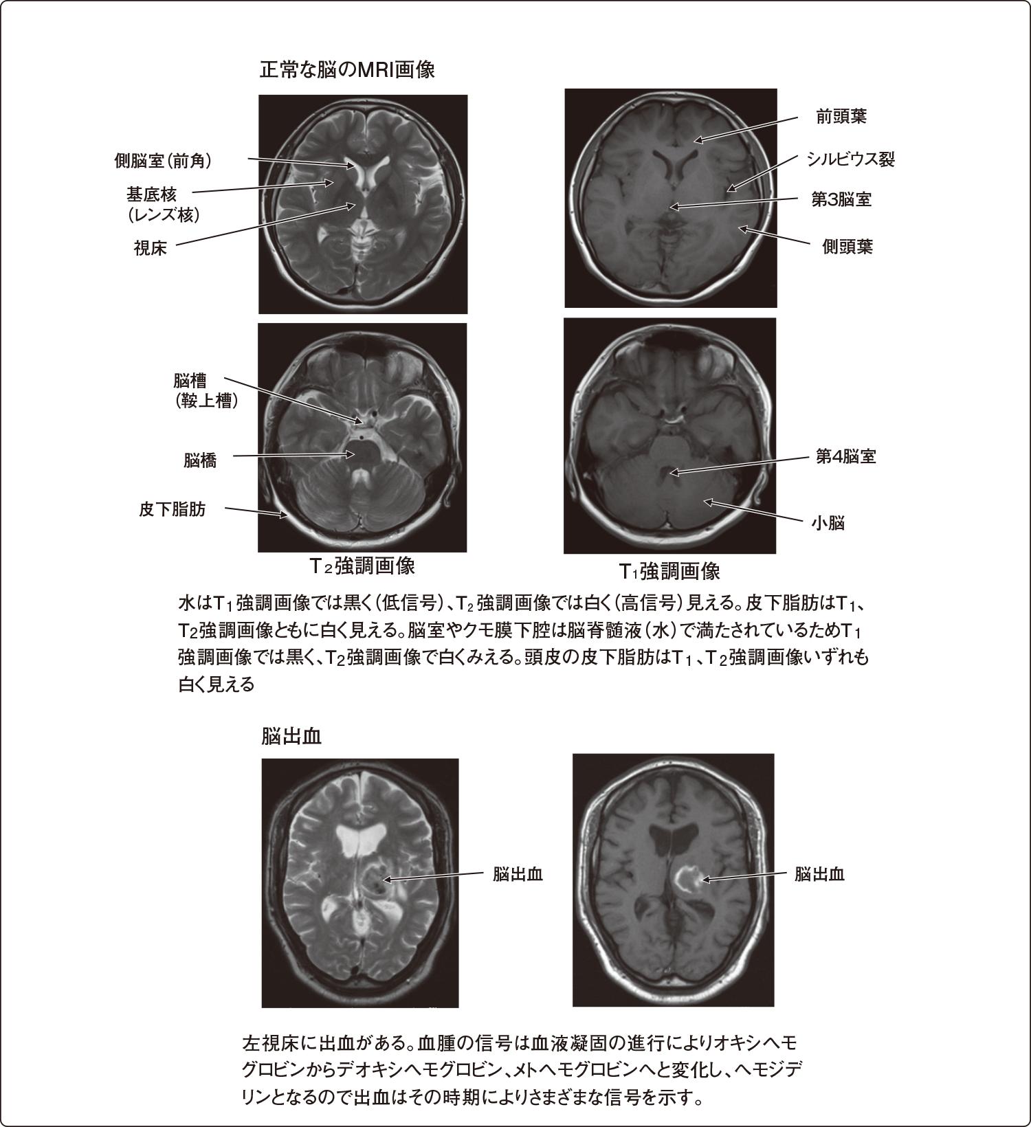 頭部MRI画像