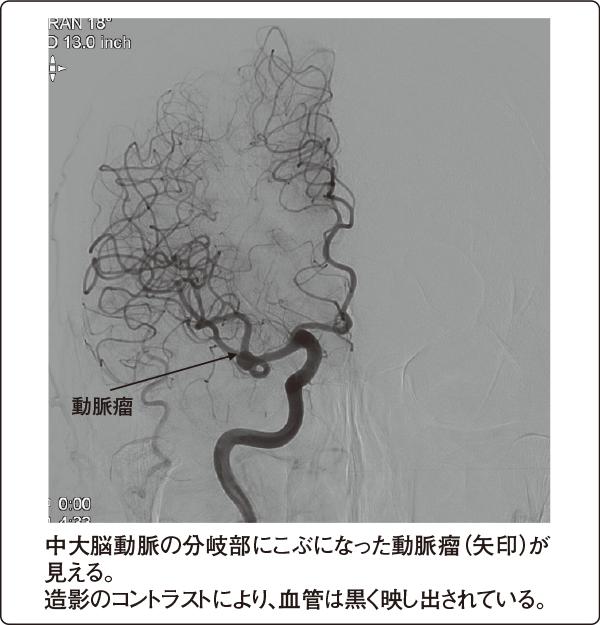 脳動脈瘤の脳血管造影