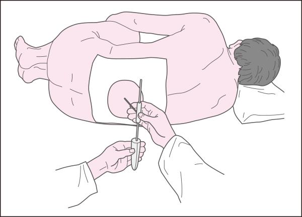 患者の体位と髄液採取