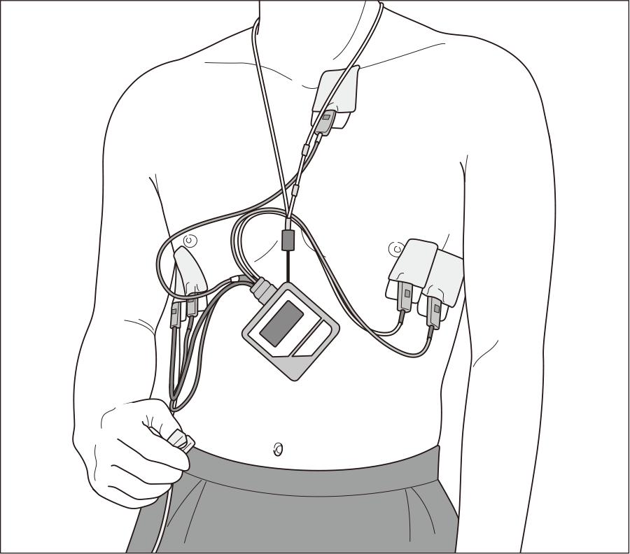 携帯型心電計の装着
