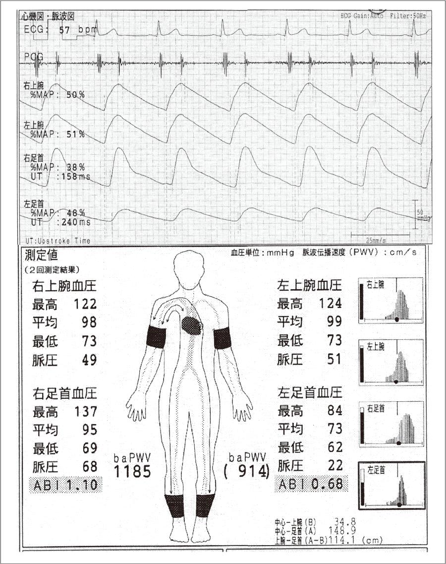54 歳の男性の心電図・心音図・脈波図および上腕・足関節の血圧