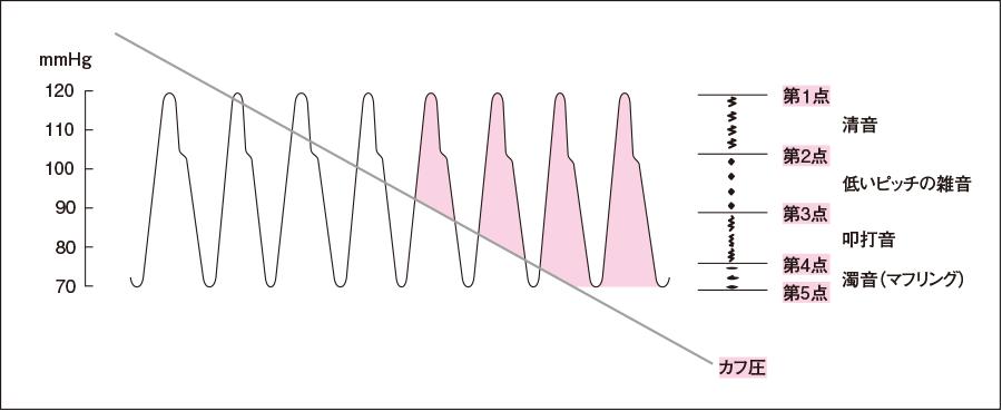 Korotkow音と血圧の関係