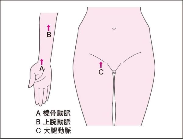 冠動脈造影のアプローチの仕方