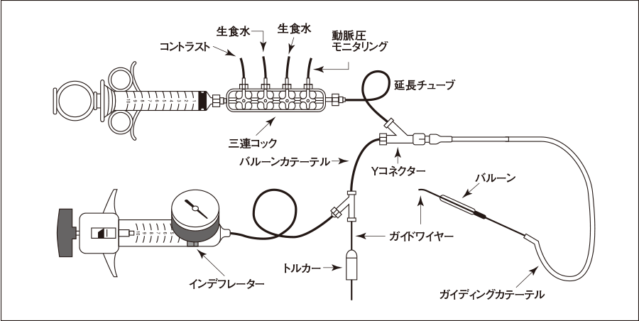 PCIシステム