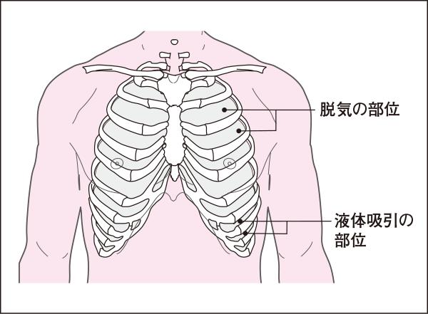 胸腔穿刺部位
