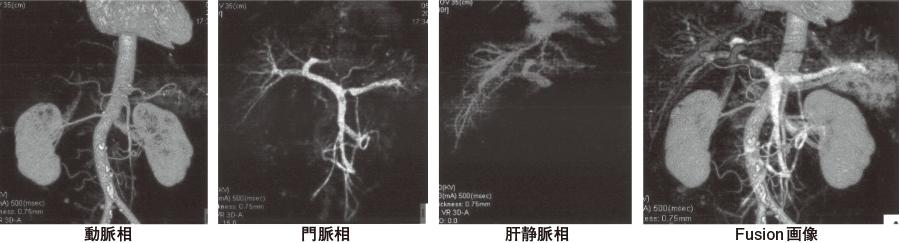 動脈相、門脈相、肝静脈相の血管三次元画像とそれらのFusion画像