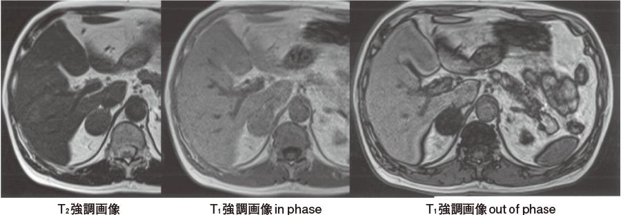 右副腎腺腫