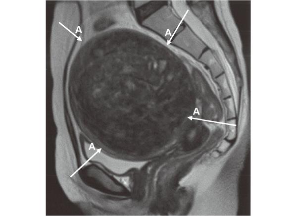 子宮疾患のMRI 子宮筋腫 T₂強調画像