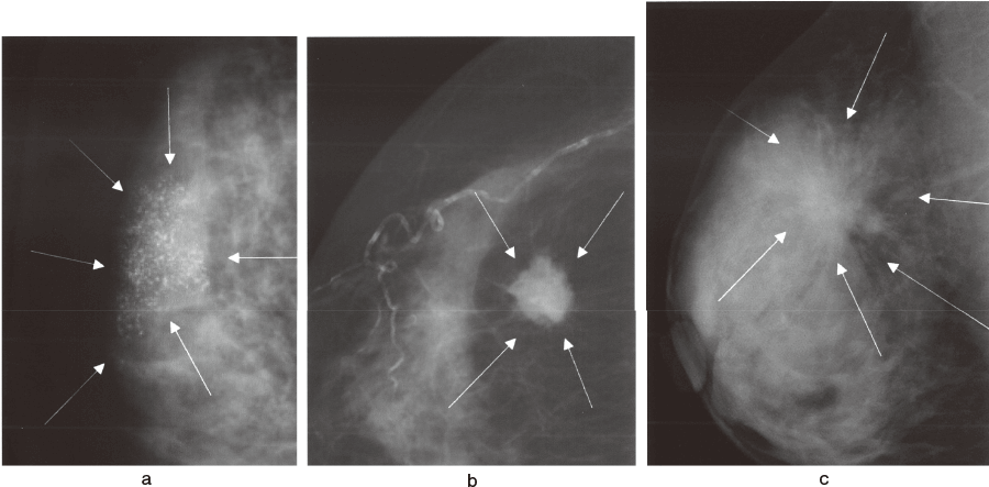 典型的な乳癌