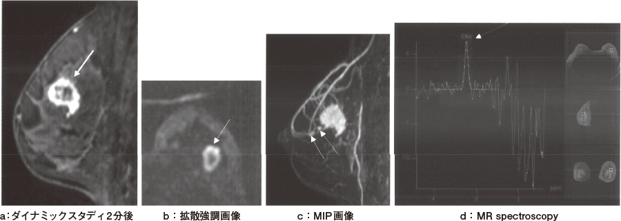 乳癌のMRI画像