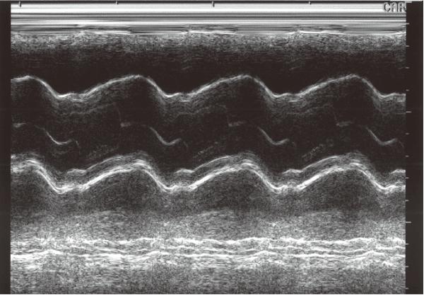 心臓の弁のMモード画像