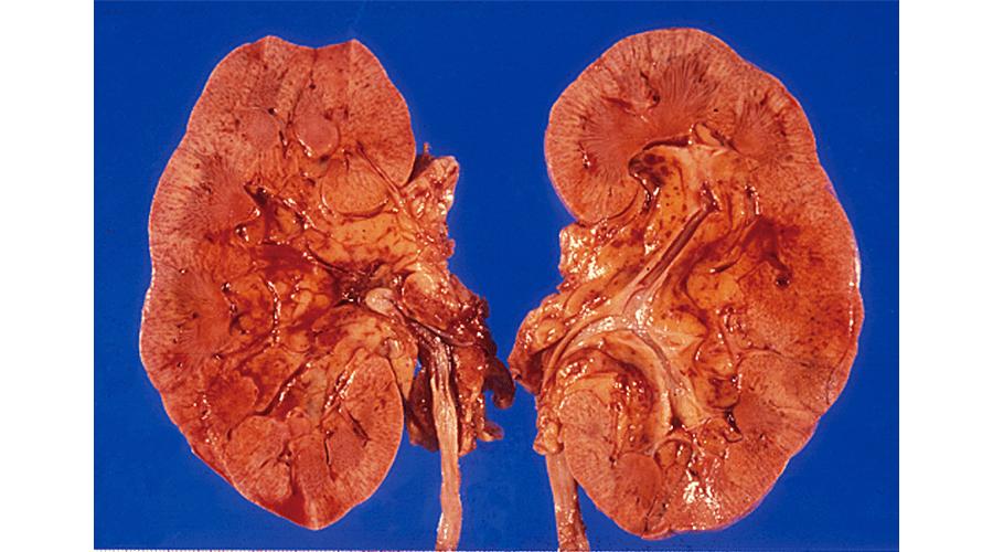 糖尿病性腎硬化症における腎肉眼像