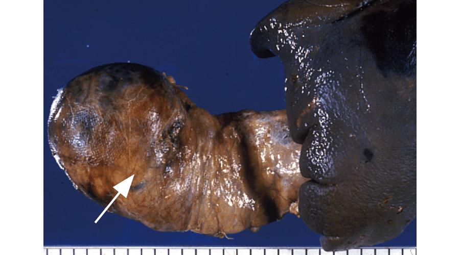 膵内分泌腫瘍(インスリノーマ)(→)